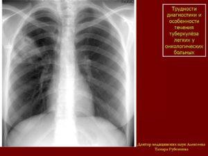 Всегда ли рак легкого от туберкулеза. Как отличить туберкулез от рака легких