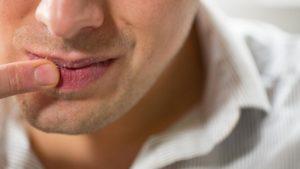 Почему возникает вязкость во рту: причины, как устранить неприятное ощущение, если вяжет язык
