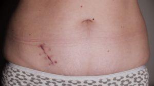 После операции по удалению аппендицита образовался свищ. Осложнения аппендицита