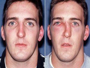 Как вправить сломанный нос? Как выровнять носовую перегородку без операций