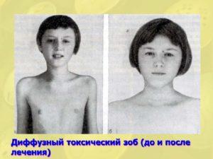 Диффузный зоб у детей. Заболевания щитовидной железы у подростков