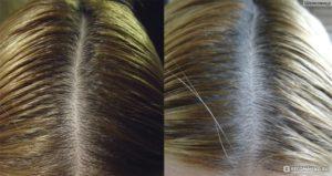 Волосы стали быстро жирнеть что делать причина. Что делать если волосы быстро жирнеют