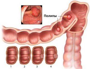 Как вылечить полипы в кишечнике народными средствами. Профилактика и лечение народными средствами полипов прямой кишки