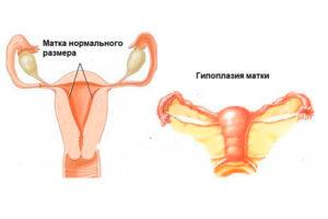 На сколько увеличивается матка. Увеличена матка – что это значит? Возможные причины патологии. Увеличение матки: причины и основные признаки