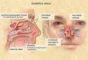 Причины закладывания носа в положении лежа ночью. Почему закладывает нос ночью в положении лежа, что делать