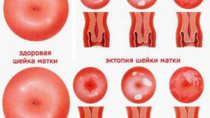 Воспаление шейки матки лечение народными средствами. Воспаление шейки матки: лечение