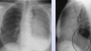 Затемнение а легком. Что означают пятна на легких при рентгене. Что такое тень на рентгенограмме, вероятные причины