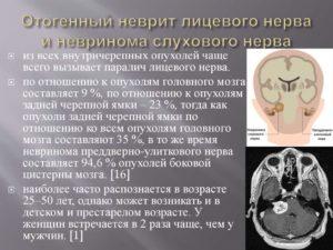 Симптомы невриномы слухового нерва: лечение традиционными и народными средствами. Питание при невриноме