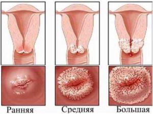 Полное выпадение матки, декубитальная язва. Как выглядит эрозия шейки матки