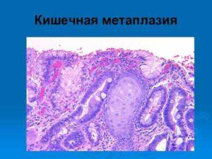 Очаговая неполная кишечная метаплазия лечение. Полная и неполная кишечная метаплазия: причины возникновения, симптомы, диагностика, лечение и профилактика. Причинами возникновения являются