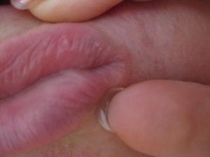 Липома большой половой губы. Как эффективно вылечить жировики на половых губах