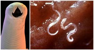 Бывают ли черные глисты в организме человека. Бывают ли черные маленькие глисты у человека