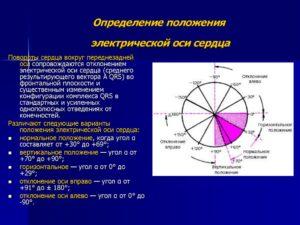 Изменения эос. ЭОС отклонена вправо: осложнения, диагностика и лечение. Болезни, сопровождающиеся левограммой