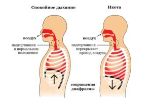 Спазм диафрагмы и диафрагмальное дыхание. Спазмы диафрагмы. Причины, симптомы, лечение Диафрагмальные судороги