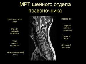 Противопоказания к мрт шейного отдела позвоночника. МРТ шейного отдела позвоночника: как проходит и что показывает процедура. Опухолевые заболевания кости