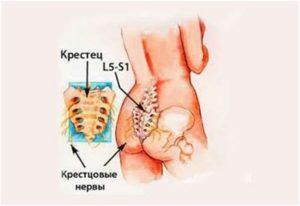 Болит крестец причины у мужчин как лечить. Боли в крестце при различных заболеваниях. Как лечить боль в крестце