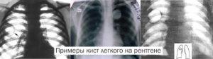 Киста легкого: классификация, причины и лечение. Киста в легких. Воздушная киста легкого: причины и лечение