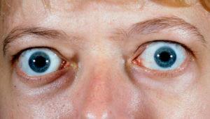 Выпучивать или вытаращивать глаза — это болезнь. Глаза на выкате у человека или экзофтальм — что это за болезнь? Выпирают глаза