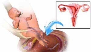 Свечи чтоб сходить в туалет после родов. Как после родов или кесарева сечения сходить в туалет по большому: как наладить стул