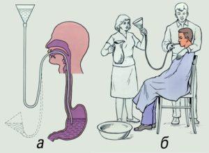 Как промывают желудок в больнице. Как прочистить желудок в домашних условиях
