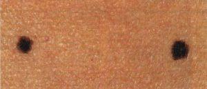 Очень темные половые губы. Тёмные половые губы: причины родинок и чёрных точек
