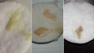 Что значат коричневые выделения (мазня) после приема Дюфастона? Коричневая выделения при лечении дюфастоном