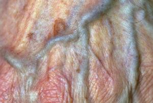 Под слизистой больших половых кровяные точки. Пигментирование половых губ. Причины высыпаний на половых органах