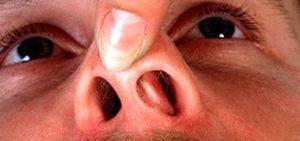 Болит слизистая носа внутри причины. Почему болит нос и как его лечить