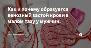 Застой в малом тазу у мужчин симптомы. Актуальные методы лечения венозного застоя крови в малом тазу у мужчин