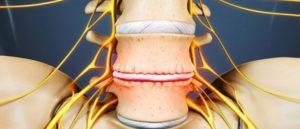 Восстановление хрящевой ткани позвоночника. Как восстановить межпозвоночные диски. Яичная скорлупа при патологиях суставов