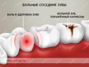 Почему к ночи начинает болеть зуб. Почему зубная боль усиливается только вечером и ночью в положении лежа, а днем — нет? Почему зубная боль усиливается только вечером и ночью в положении лежа, а днем - нет