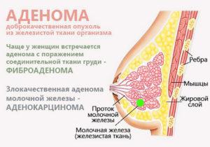 Аденома молочной железы: причины появления, симптомы и лечение патологии. Аденома соска молочной железы
