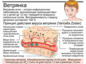 Могут ли груднички заболеть ветрянкой. Что говорит доктор Комаровский. Особенности проявления болезни
