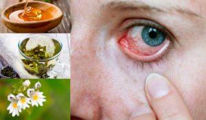 Сухость глаз: причины и лечение народными средствами. От сухости глаз народные средства
