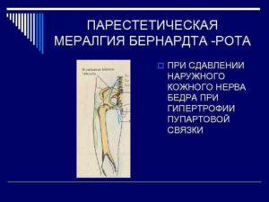 Или парестетическая мералгия рота