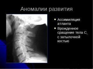 Врожденная аномалия сращения шейного отдела позвоночника. Лечение ассимиляции атланта. Симптомы ассимиляции атланта