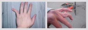 Что делать если выбил мизинец на руке. Как вылечить выбитый палец на руке