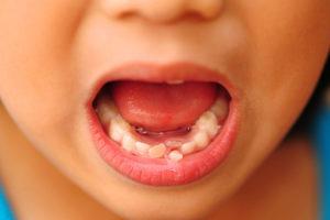 Чем вырвать молочный зуб. Как выдернуть молочный зуб ребенку в домашних условиях без боли