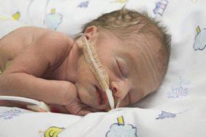 Причины, лечение и последствия менингита у новорожденных младенцев. Менингит у новорожденных детей