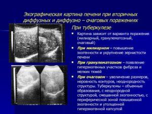 Ультразвуковой синдром диффузного поражения печени. Эхографические признаки диффузных изменений структур печени