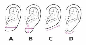 Какие мочки ушей бывают. Как узнать характер по форме ушей