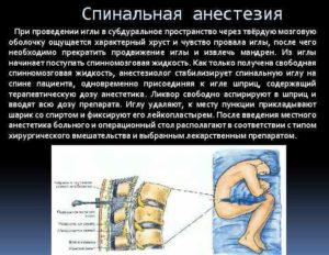 Положение пациента после проведения спинномозговой анестезии. Спинальная анестезия: показания, как проводят, препараты, реабилитация. Итак, давайте разберёмся, что это за метод и как он действует
