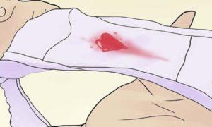 После па пошла кровь. Почему могут появляться кровянистые выделения после секса