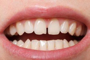 Что делать, если расходятся зубы. Почему появляется щель между передними зубами