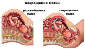 Почему матка бывает в тонусе. Тонус матки: последствия, лечение, симптомы, причины
