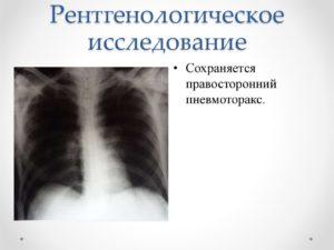 Обзор по рентгенологической диагностике пневмоторакса. Пневмоторакс: рентгенологическая диагностика Спонтанный пневмоторакс рентгенологическая картина