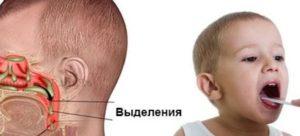 Отчего у ребенка сопли в носоглотке и почему они не высмаркиваются? Сопли не высмаркиваются, что делать