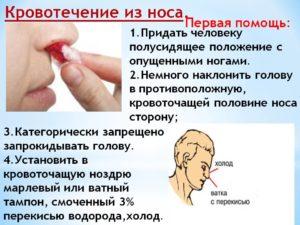 Как вызвать кровь из носа без боли? Что делать, если идет кровь из носа