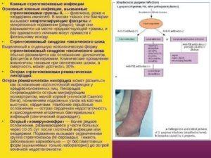 Стрептококковые инфекции. Заразна ли стрептококковая инфекция