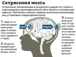 Как проверить есть ли сотрясение мозга. Как проверить сотрясение мозга